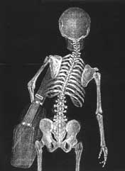 An x-ray picture of a child carrying a school bag clearly shows misalignment of the spine