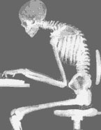 Xray image of man at computer with very curved spine